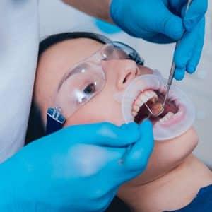 שתלים בשיניים קדמיות